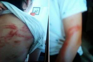 Bà ngoại 'tố' hai cháu bị bố bạo hành, dùng thắt lưng đánh đập