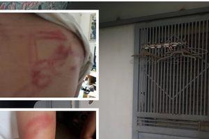 Điều tra nghi án bố vô cớ bạo hành hai con bằng tuýp sắt