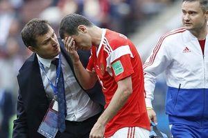 'Messi của Nga' nguy cơ chia tay World Cup 2018 sớm vì chấn thương