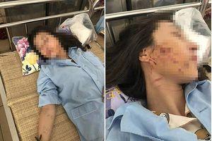 Cô gái bị lột đồ, đổ mắm vụ đánh ghen tiết lộ tên 3 kẻ đánh đập mình