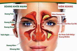Chữa viêm xoang, viêm mũi dị ứng lâu năm, có thể trị dứt bằng thảo dược này