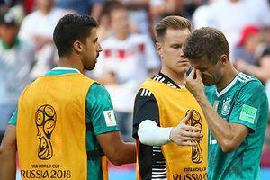 Đội tuyển Đức: Đứa trẻ hư được nuông chiều