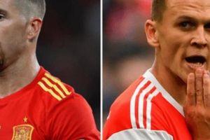 Nhận định tỷ lệ thẻ vàng Tây Ban Nha vs Nga (21h00 ngày 1.7)
