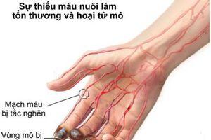 Người đàn ông bị tím tái cẳng tay, suýt hoại tử tay vì uống thuốc tim mạch không đều