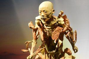 Triển lãm cơ thể người gây tranh cãi gay gắt, Bộ Văn hóa vào cuộc