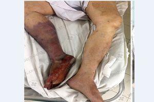 Người đàn ông 46 tuổi bị cắt chân vì uống thuốc không đều