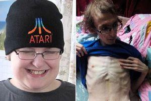 Phẫn nộ cậu bé bị gia đình bỏ đói đến chết trong tình trạng lở loét toàn thân