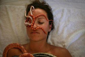 Sởn da gà cách trị bệnh bằng... một đàn rắn