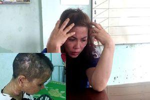Truy tìm thêm người 'chị em kết nghĩa' cùng nữ chủ nhà đánh đập, tra tấn dã man người giúp việc
