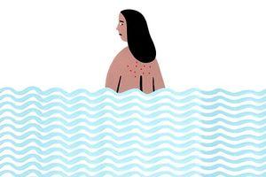 7 mẹo trị mụn lưng nhanh gọn giúp các nàng tự tin diện đồ hè