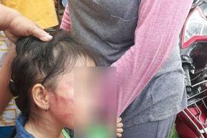 Gia đình bức xúc vì bé 5 tuổi bị bảo mẫu đánh sưng tím mặt do nôn ói
