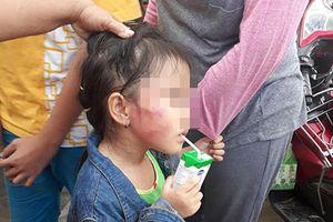 Gia đình bé gái 5 tuổi bị cô giáo tát sưng tím mặt cầu cứu Hội Bảo vệ quyền trẻ em