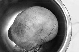 Người phụ nữ suýt tử vong vì khối u nang buồng trứng 'khổng lồ' do sợ dao kéo