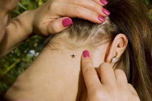 Cảnh báo của 1 bà mẹ về vết côn trùng cắn rất nhỏ nhưng lại nguy hiểm đến tính mạng trẻ