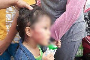 Thông tin gây sốc về vụ bảo mẫu tát bé gái nứt xương hàm