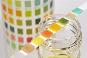 Màu sắc nước tiểu 'tiết lộ' gì về sức khỏe của bạn?