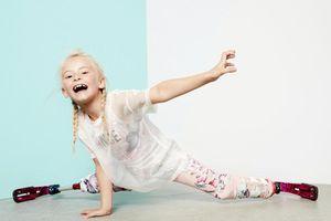 Từ cô bé cụt hai chân đến người mẫu hãng thời trang nổi tiếng