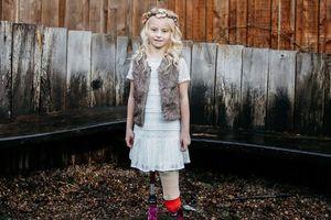 Cô bé cụt chân trở thành người mẫu nhí chuyên nghiệp
