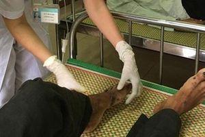 Bộ Y tế yêu cầu giám sát 'bệnh lạ' tái xuất tại Quảng Ngãi