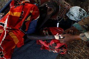 Hình ảnh đau lòng về nạn đói ở Nam Sudan
