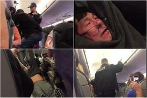 United Airlines mất hàng trăm triệu USD vụ đuổi hành khách gốc Việt