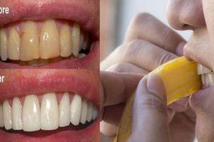 Bạn sẽ phải 'sốc' nặng vì vỏ chuối làm trắng da lẫn răng vượt trội đến cỡ này
