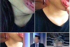Vụ MC bị tố bạo hành em vợ: Lời tố cáo trên mạng xã hội có được pháp luật thừa nhận?