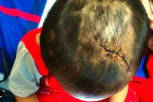 Kinh hãi vết thương trên người bé 3 tuổi nghi bị cha dượng bạo hành