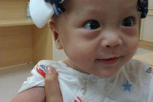 Vừa được cai máy thở oxy, bé 1 tuổi lại nghi mắc bệnh não úng thủy, phải sang Singapore chữa bệnh