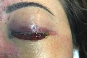 TP HCM: Cô gái mù mắt sau khi tiêm filler nâng mũi ở spa