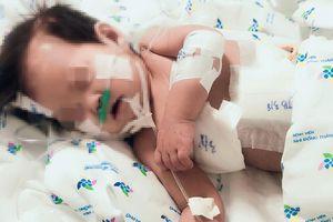 Kháng kháng sinh, bé gái 10 tháng tuổi bị thủng thực quản, tràn mủ màng phổi
