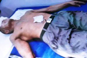 Thái Bình: Điều tra vụ việc cụ ông 67 tuổi bị tạt axit