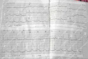 Nam thiếu niên mắc bệnh tim vì nhiễm siêu vi