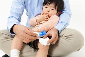 BS mách cách sơ cứu khi trẻ bị bỏng cha mẹ nào cũng nên biết