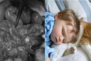 Nhiễm khuẩn từ chó mèo cực kỳ nguy hiểm với trẻ em