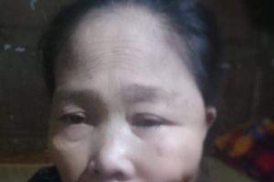 Khuôn mặt bị 'đục khoét', người phụ nữ đau đớn