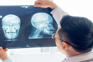 Tất tần tật những điều cần biết để phát hiện sớm UNG THƯ ĐẦU VÀ CỔ