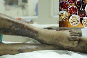 Sở Y tế Hà Nội thông báo tình hình dịch bệnh