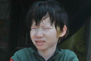 Giấc mơ đến trường của chàng bạch tạng tên 'Câm'