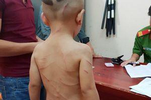 Bé trai 3 tuổi bị cha dượng đánh chi chít vết thương trên lưng