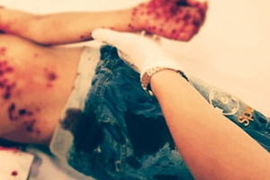 Đồ chơi bằng pin tự phát nổ khiến bé trai phải nhập viện cấp cứu