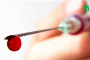 Virus HIV sống bao lâu trong bơm kim tiêm?