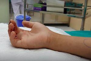 Hà Nội: Bé 9 tuổi kẹt ngón tay ở cửa thang máy