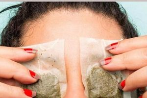 Cách đơn giản giúp bạn loại bỏ thâm quầng cho mắt