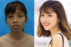 Từng có ý định tử tự vì bị ví 'Thị Nở thời hiện đại', cô gái đến từ Bắc Ninh quyết thẩm mỹ khiến người thân không nhận ra