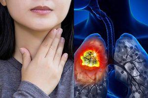 Căn bệnh ung thư phổi của diễn viên Mai Phương nguy hiểm như thế nào?