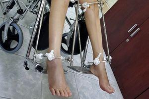 Có thể cao thêm tới 20cm, kéo dài chân đau cỡ nào?