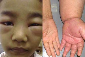 Hội chứng thận hư ở trẻ em: Dấu hiệu và cách chăm sóc trẻ mắc bệnh cha mẹ cần biết