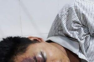 LD18106: Chàng thanh niên Hà Nhì nghèo dang dở ước mơ vì tai nạn giao thông