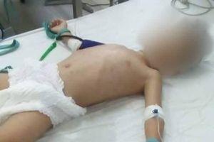 Bé trai 5 tuổi bị người tình của mẹ bạo hành đến hôn mê, nguy kịch